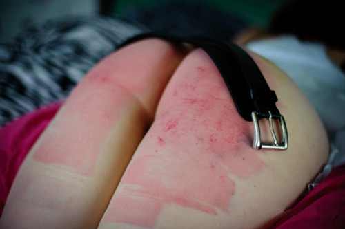 How to clear up spank marks interesting