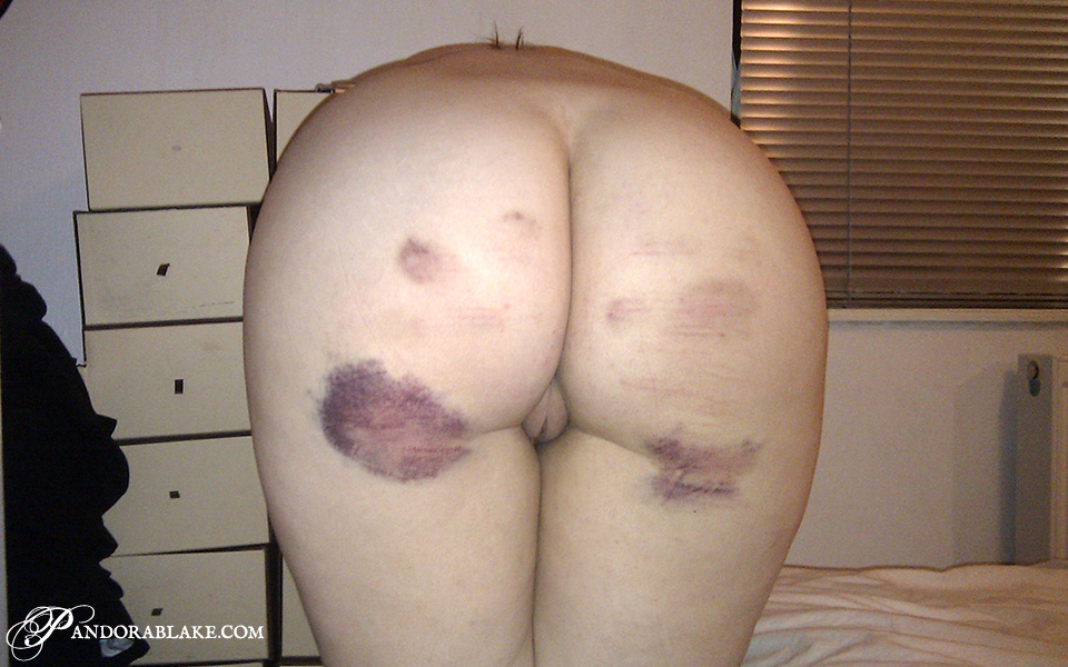 Epic post party bruises